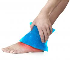 Ice might be recommended to treat the swelling of an ankle effusion.