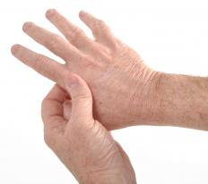 A web hand exercise may be beneficial for someone with arthritis in the hands.
