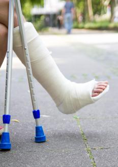Traditionally made from cotton bandages soaked in plaster of paris, an orthopedic cast is used for healing set broken bones.