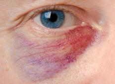 People with a basilar skull fracture commonly experience black eyes.