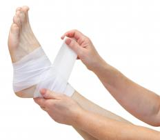 Athletic tape is sometimes used to secure parts of the body that need a lot of support, such as the ankles.