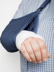 People with broken bones sometimes seek short-term physical therapy.