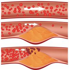 Ischemic heart disease is defined by deposits of plaque along the walls of the coronary arteries.