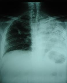 A pleural effusion occurs when excess fluid builds around the lungs.