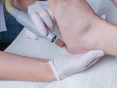 Medical intervention may be necessary if a callus causes discomfort.