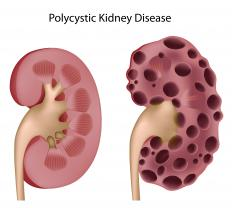 Polycystic kidney disease can cause edema of the kidney.