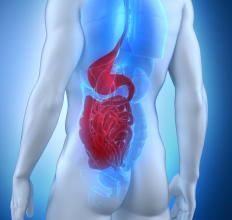 Cecal volvulus is a serious medical condition affecting the intestines.