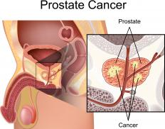 Androgen ablation attempts to control the tumor size of prostate cancer.