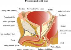 The prostate is part of the male reproductive system.