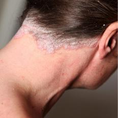 Psoriasis usually extends beyond the hairline.