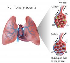 An individual's colloid osmotic pressure may be measured to diagnose pulmonary edema.