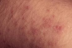 Rashes may be the result of an allergic reaction.