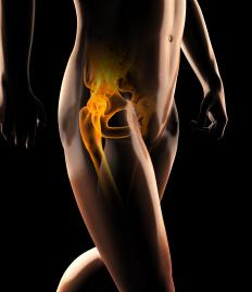 Hip bursitis, when the bursa of the hip becomes inflamed, may cause thigh and hip pain.