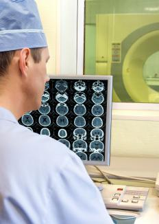 Radiologist reviewing medical images.
