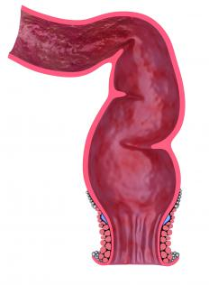 Rectal prolapse is the result of a weakened rectum.