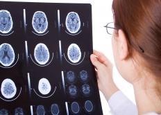 Brain injuries can range in severity depending on the location of the injury.