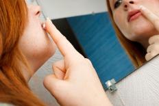 Commercial skin products may be used to reduce the appearance of cold sore scars.