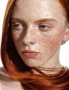 Heredity is a common cause of large freckles.