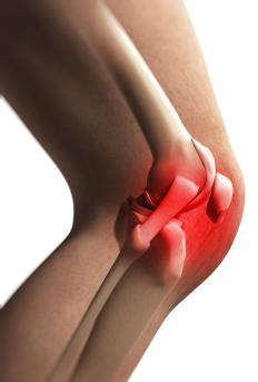 Bursitis is more common in joints that move repetitively, such as the knee.