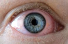 Toxins that enter the body as vapors can damage the eyes and cause painful irritation.