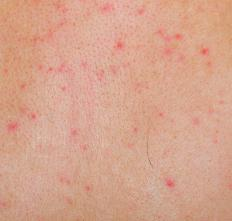 Some rashes are characterized by red, itchy bumps on the skin.