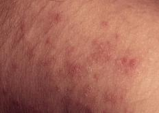 Morbilliform rashes are raised, discolored spots that spread across the body.
