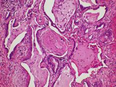 Respiratory epithelial tissue can be separated by bands of inflamed tissue and muscle.