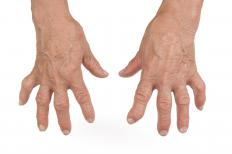 There is no relationship between cracking knuckles and arthritis.