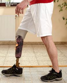 In many areas, the psychological and emotional cost of losing a limb is included in general damages.
