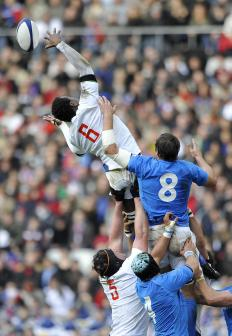 Rugby players are prone to osteitis pubis injuries.