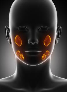 Sialadenitis is acute or chronic inflammation of one or more salivary glands in the face.
