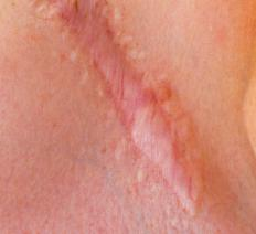 An incision scar.