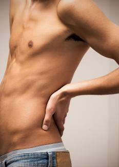 Symptoms of a bulging disc may include severe back pain.