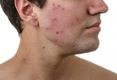 Doxycycline monohydrate may be used to treat acne.