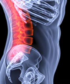 Retropulsion may refer to a condition of the spine where fragments are forced into the spinal canal.