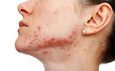 The development of acne is a potential side effect of DHEA supplementation.