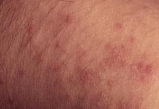 Patients with rashes tend to be more sensitive to sun and other irritants.