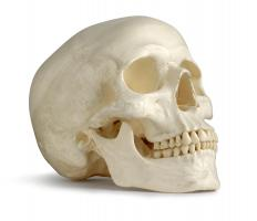 The parietal bone is actually comprised of two bones that make up the right and left sides of the head.