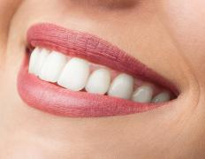 The number of muscles used to smile varies.