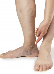 Spider veins are most common in the lower legs and ankles, and are related to circulation.