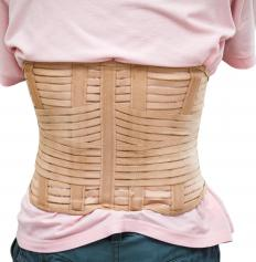 A brace may have to be worn to further stabilize the spine following scoliosis surgery.