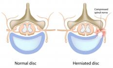 Disc herniation is a common cause of nerve pain in the arm.