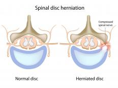 A healthy spine and a spine with a herniated, or compressed disc.