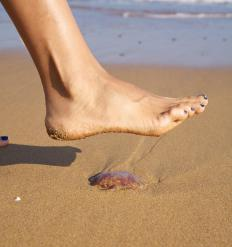 Acetic acid, which is found in vinegar, is a popular treatment for jellyfish stings.