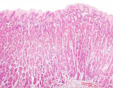 Protective human tissue lines the stomach.