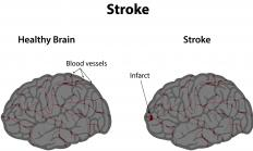 Apoplexy is also known as a stroke, as it reduces the blood supply that carries oxygen to the brain.