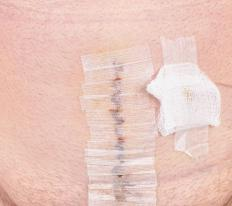 Butterfly stitches may be called steri-strips, and are designed to close small wounds.