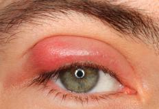 Swollen eyelids may be a sign of periorbital cellulitis.