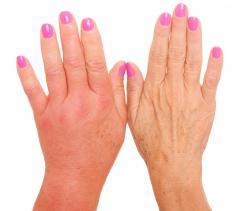Kidney disease causes a swollen face, hands, and feet.