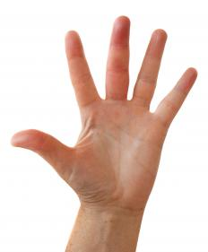 A person with swollen hands.